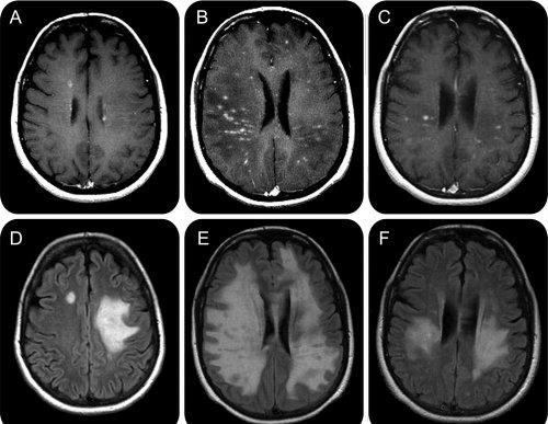 durere articulară scleroză multiplă