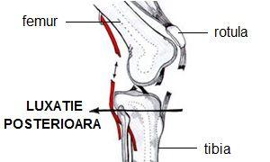 tratamentul durerilor articulare la sportivi când durerea dispare după înlocuirea șoldului
