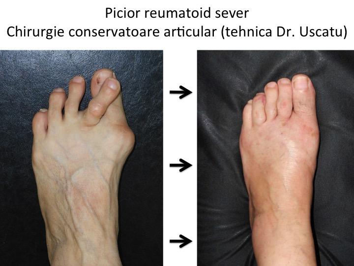 cauza inflamației articulare pe degetele de la picioare