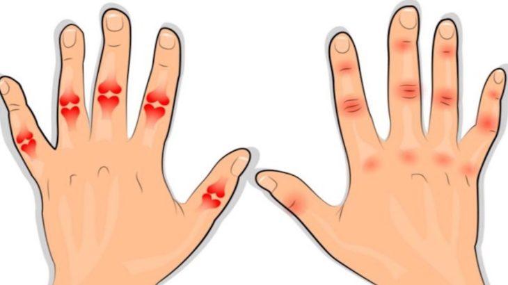 cum să depășești artrita degetelor