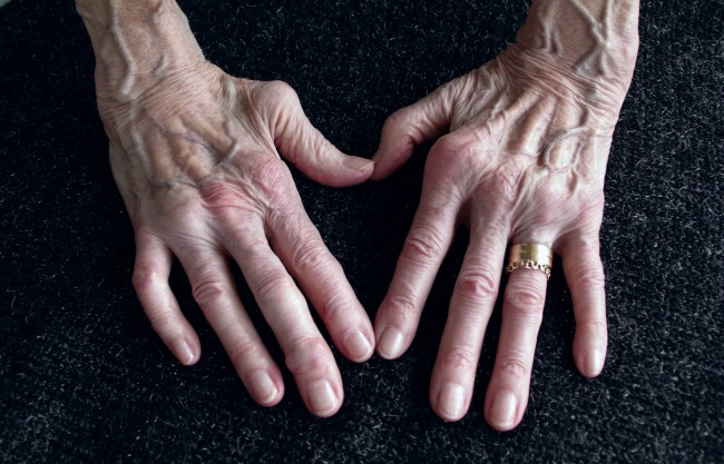 tratamentul artritei reumatoide a degetelor
