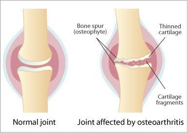 artroza articulațiilor interfalangiene ale piciorului