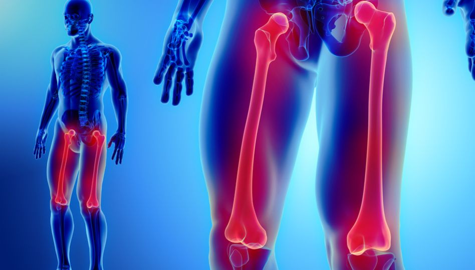 dureri de picioare după înlocuirea șoldului