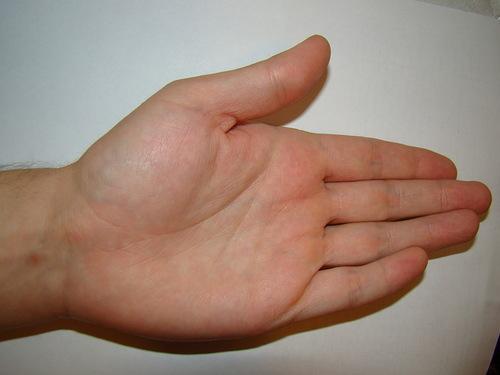 cremă pentru dureri de spate cu osteochondroză