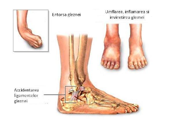 inflamația gleznei după fractură