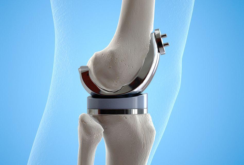 Ce medicamente să luați cu artroza articulației șoldului. Cauzele durerilor de șold