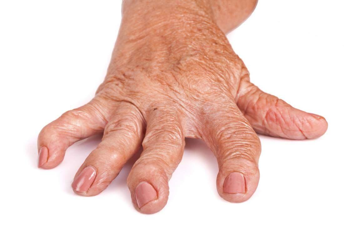 care articulatiile devin inflamate cu artrita reumatoida cremă inteligentă pentru articulații de unde să cumperi