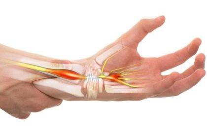 curge dureri articulare tratamentul sinovitei cronice a genunchiului