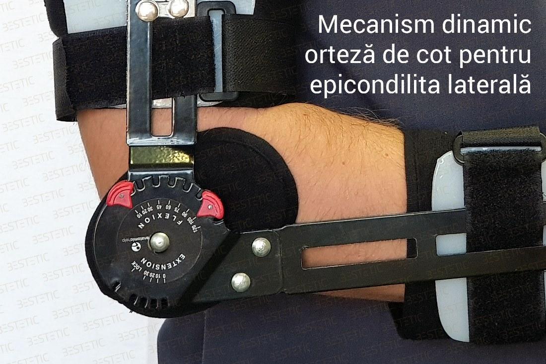 Epicondilita articulației cotului care se vindecă, Epicondilita laterala