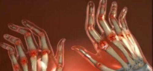 durere în articulația brațului din care