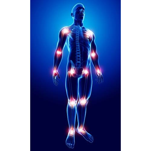 Dureri articulare după ARVI decât tratament, Umflarea genunchiului în artrita reumatoidă