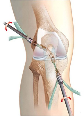 cum să alinați umflarea genunchiului după accidentare