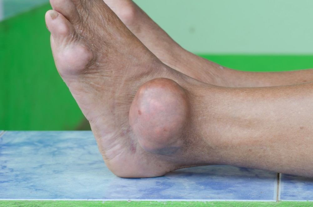 Guta - boala metabolica pentru care exista tratament