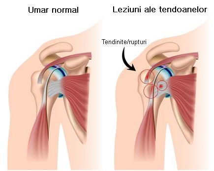 dureri de umăr traumeel dureri severe în zona șoldului