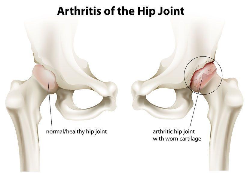 artrita artroza articulației șoldului
