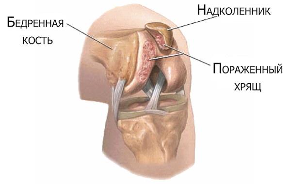 Inflamația măduvei osoase a genunchiului