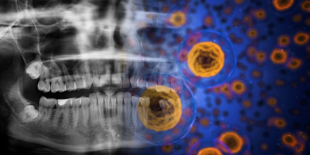 Terapia Cu Celule Stem, Utilizată în Boli Articulare și Medicina Estetică   Libertatea