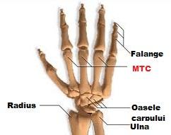 inflamația articulațiilor de pe mână edem postoperator al genunchiului
