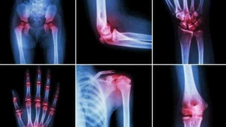 durere la nivelul genunchiului cel puțin