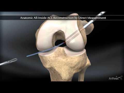Tratamentul articulației sevastopol