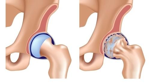 artroza postoperatorie a articulației șoldului împotriva inflamației în articulații