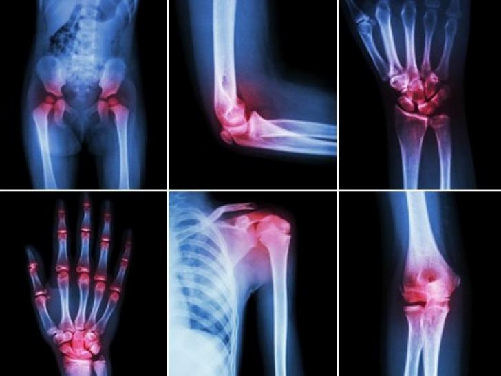 artroza și diferența de tratament cu artrita dureri articulare din caldura