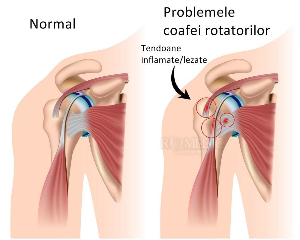tratamentul artrozei cu turmalină articulația degetelor umflate după rănire
