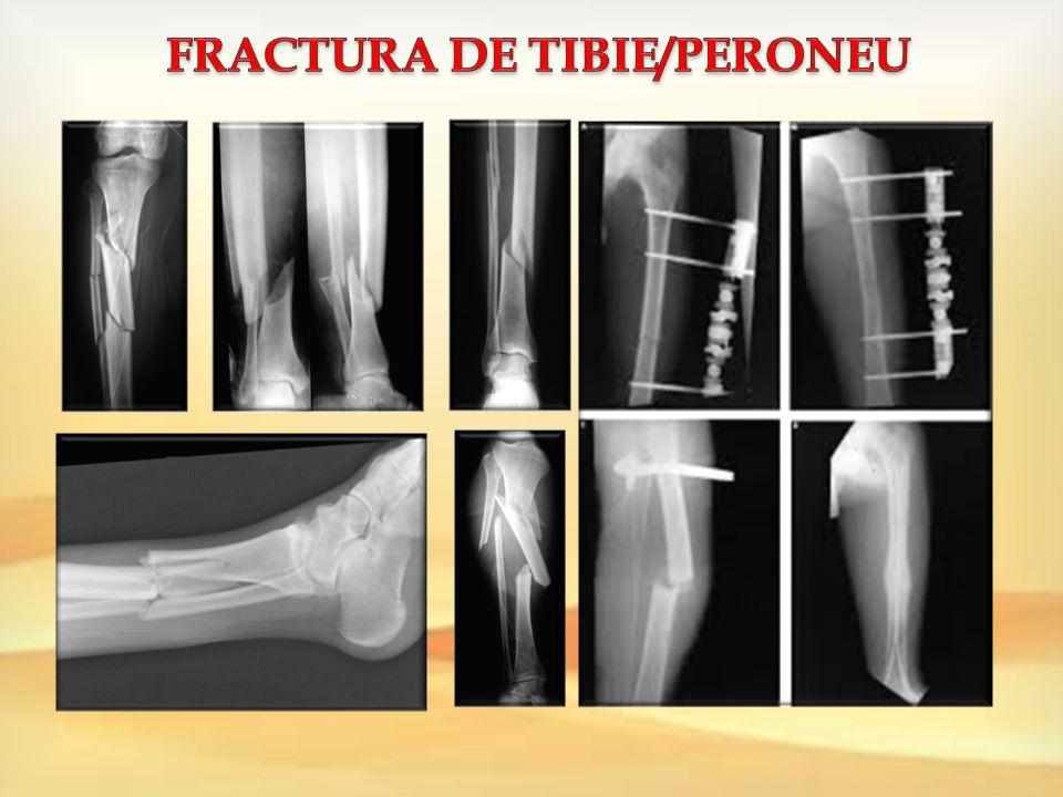 fracturi osoase deschise și leziuni ale articulației deschise
