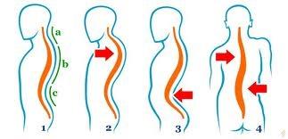 simptomele bolilor articulare și ale coloanei vertebrale articulațiile gleznei doare mult