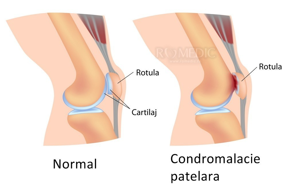 articulația caldă a genunchiului