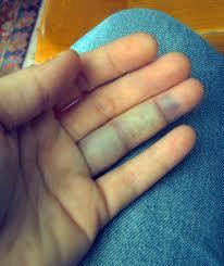 articulația pe un deget doare luxația