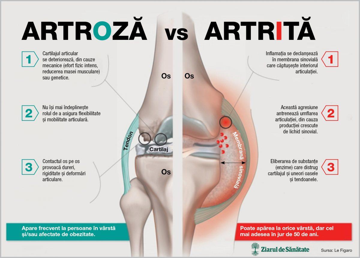artrita acuta a articulatiei