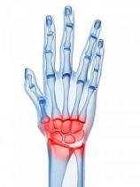 artrita articulației încheieturii mâinii stângi durere în timp ce mergeți în articulațiile șoldului