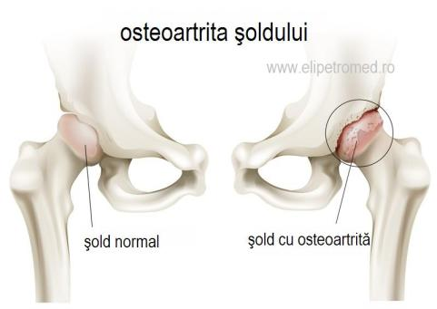 tratamentul bolii la încheietura mâinii tratează artroza articulației