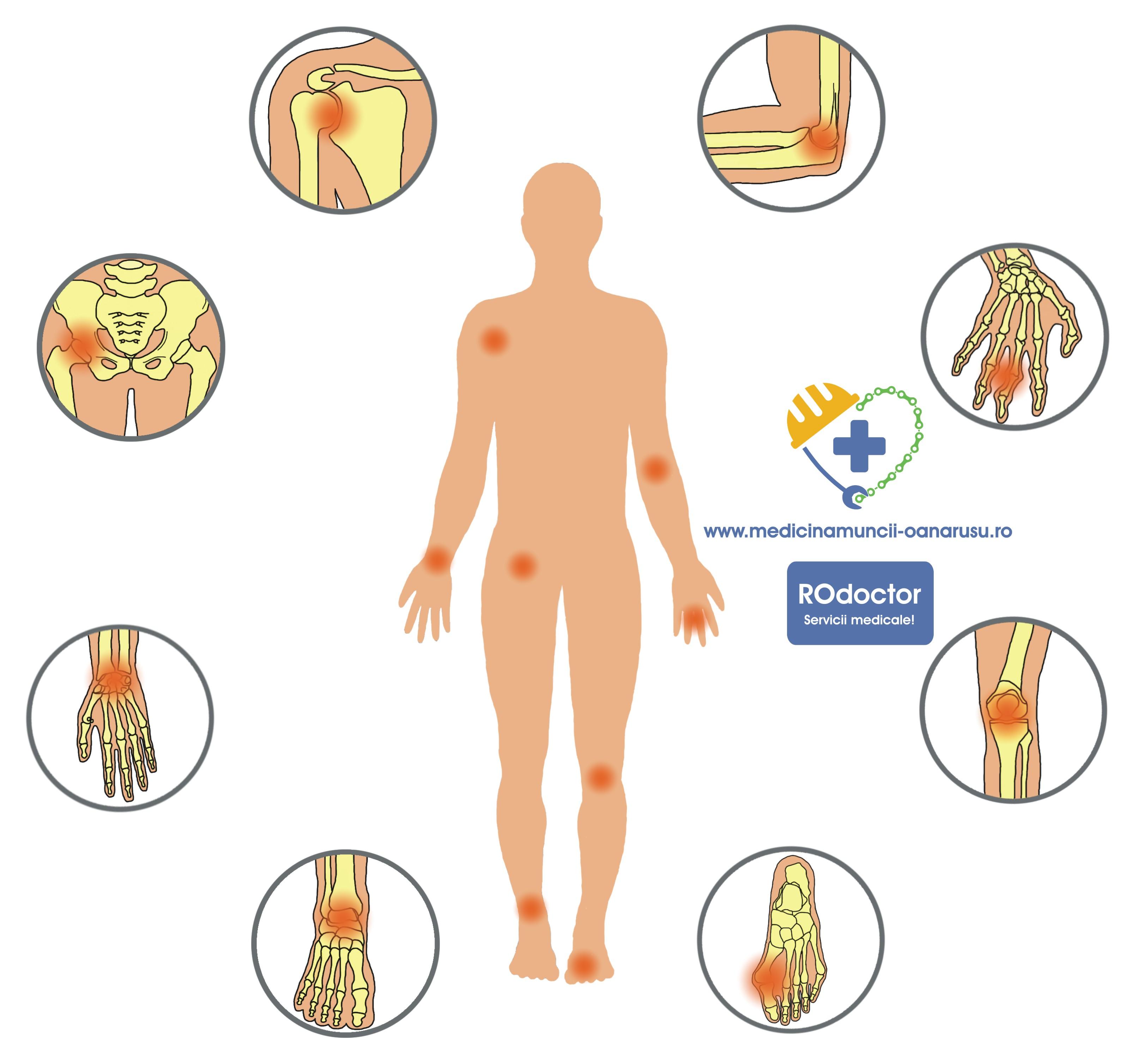 artrita reumatoida brat amortit