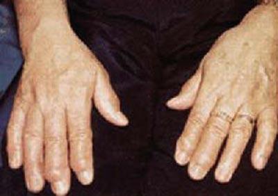 Forme de debut in poliartrita reumatoida