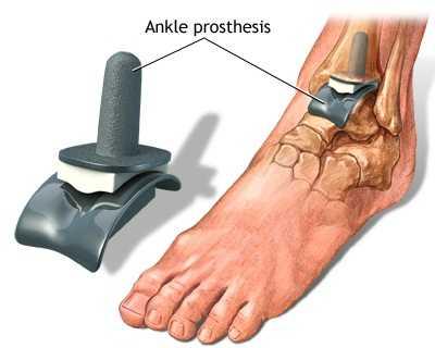 Artroza posttraumatică a articulației gleznei stângi