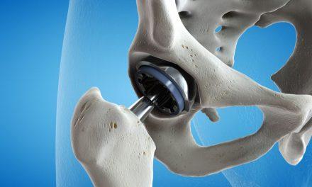 tratament articular ortopedic