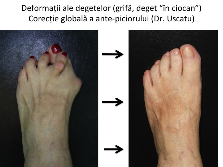 Deformatiile degetelor laterale - Tratament si corectii