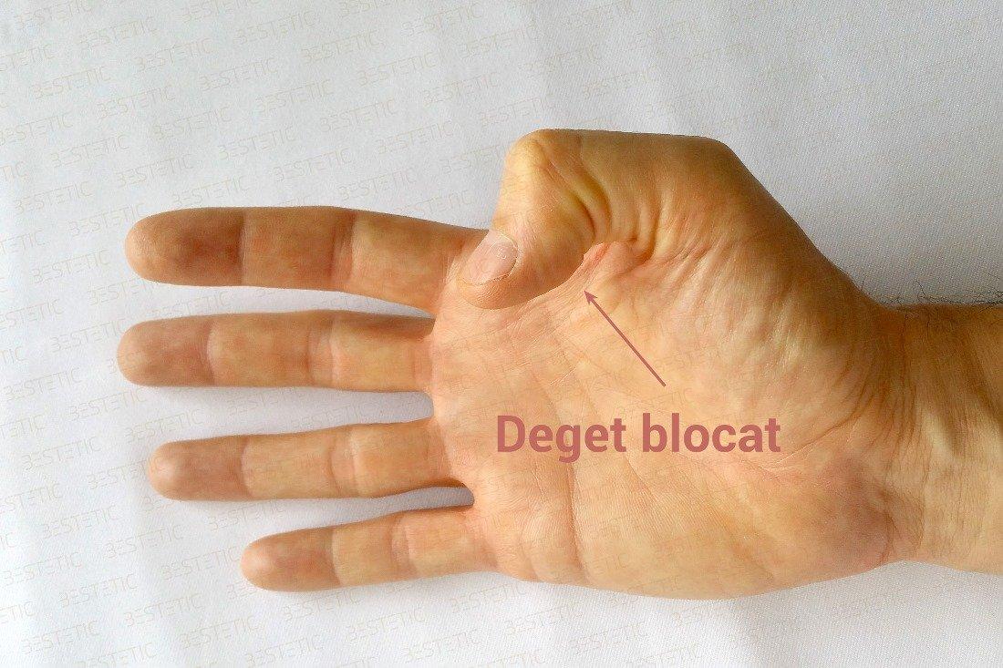 dă clic și doare o articulație a degetului durere în articulația șoldului decât amețire
