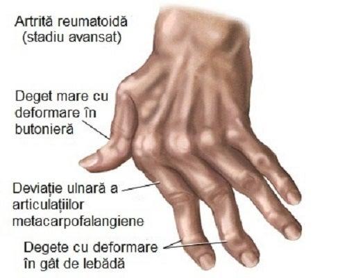Durere și umflături pe articulațiile mâinilor