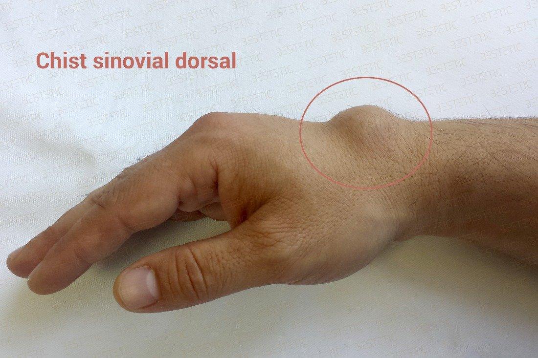 ce boli articulare sfătuiți unguent pentru articulația genunchiului
