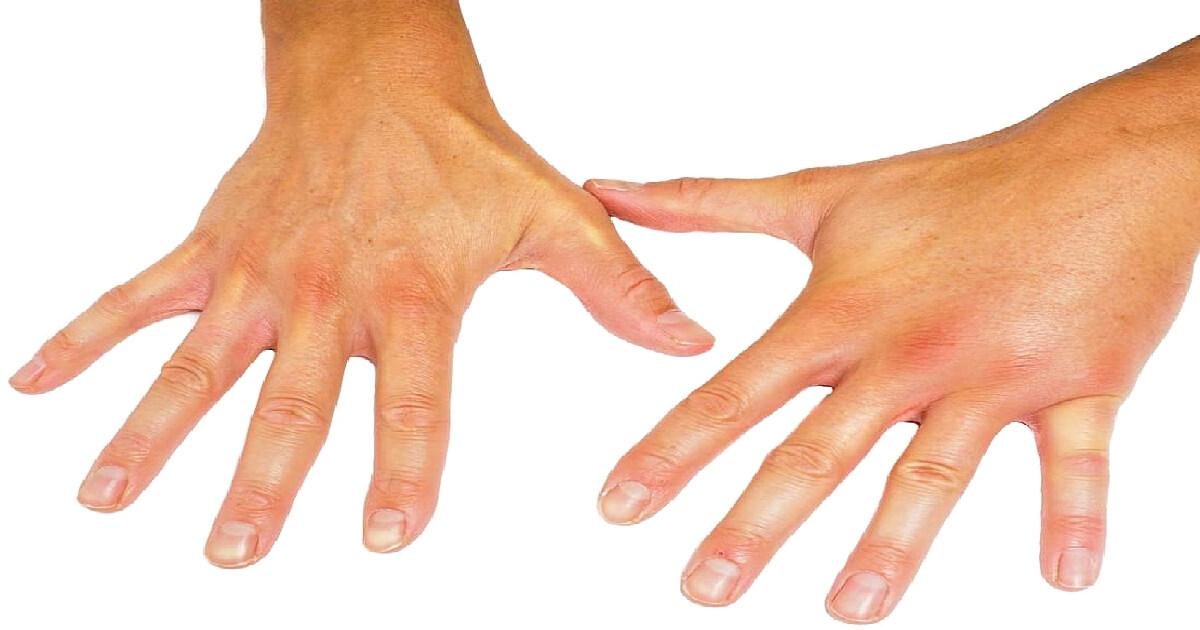 boala de afectare articulară cu durere în articulația cotului