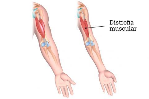 boala musculară a articulației gleznei
