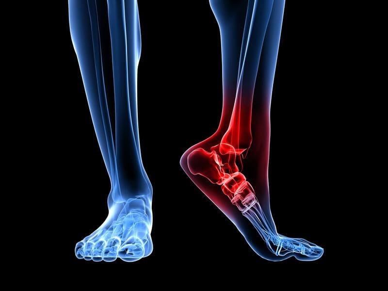 diferența de artroză față de coxartroza articulației șoldului unguent pentru osteochondroza cervicală și tablete pentru durere
