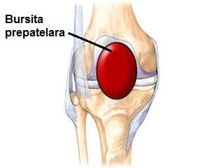 Diagnosticul și tratamentul sinovitisului suprapatelar - Talipes