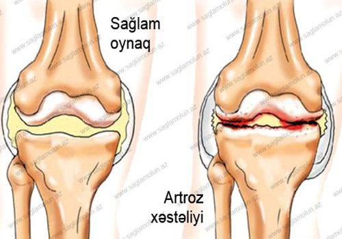 osteoartroza articulațiilor de deformare a mâinii