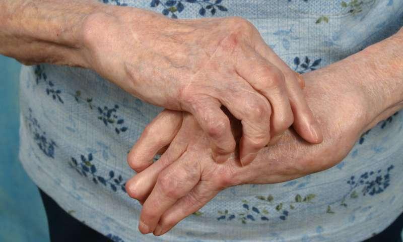 care este diferența dintre artrita și artroza articulațiilor trăgând dureri de șold