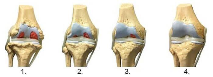 meniscul afectează articulația genunchiului artroza tratament de 2 grade glezna