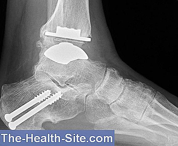 ce trebuie să mănânci cu artroza articulației gleznei